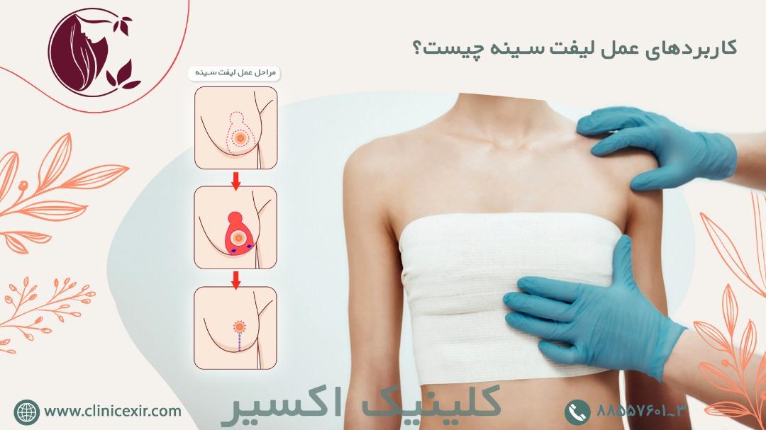کاربرد عمل لیفت سینه