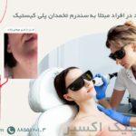 لیزر موهای زائد برای خانم های مبتلا به کیست تخمدان